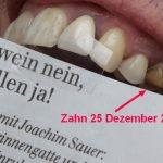 Zahnprovisoriumzahn25