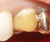 Zahnprovisorium